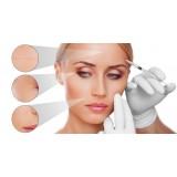 Alta Care Beauty Spa - Trattamento Dermastir Microdermoabrasione del Viso con Microcristalli - Pacchetto